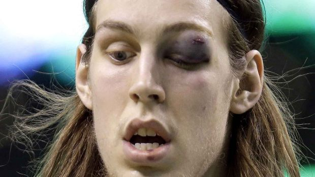 040115-NBA-Boston-Celtics-center-Kelly-Olynyk-PI.vadapt.620.high.0